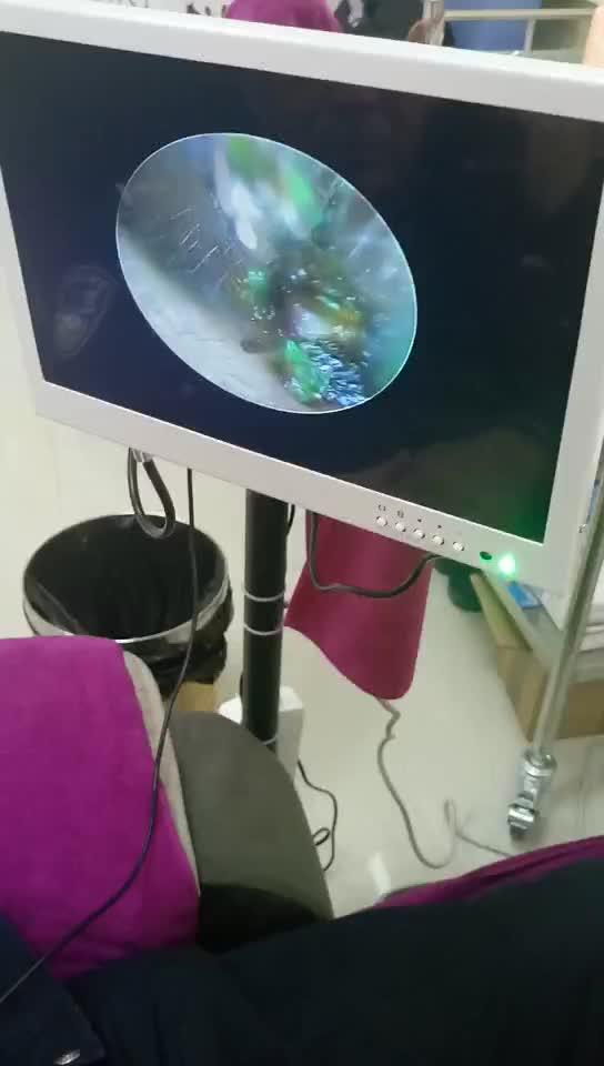 石岛可视采耳视频直播拼音_石岛可视采耳全集教程资料图片