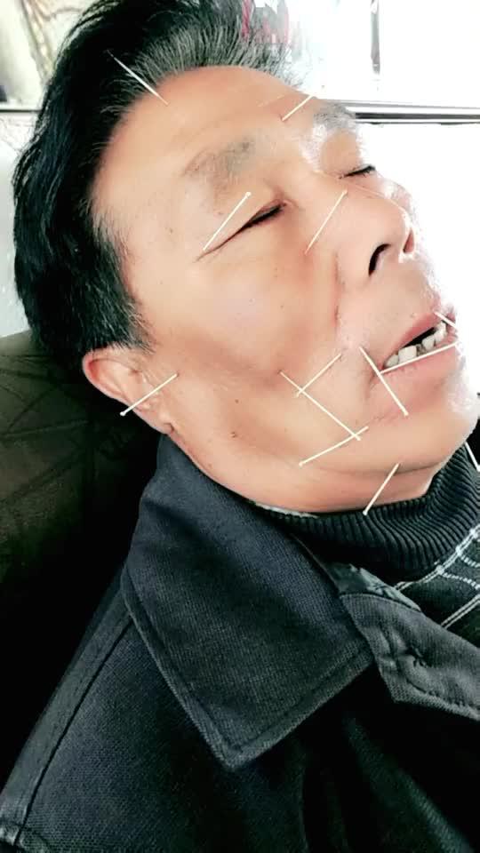姜氏针灸美甲v针灸视频直播粉色_姜氏全集正骨针灸视频正骨图片